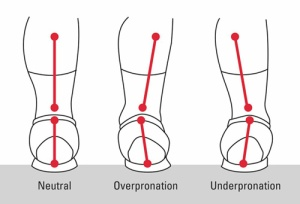 The Myth of Over-Pronation